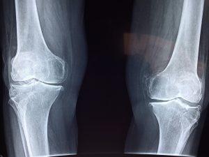 knee-x-ray