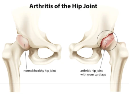 hip-joint