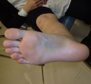 Lisfranc-injury